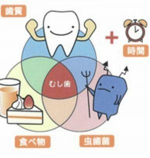 虫歯の要素