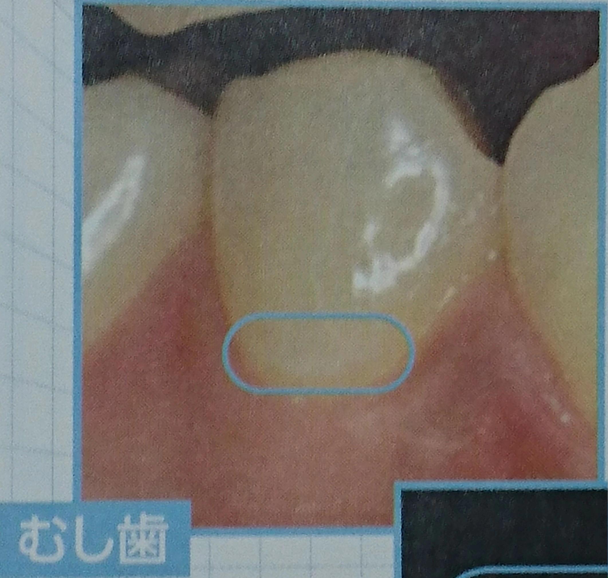 歯が溶ける 虫歯
