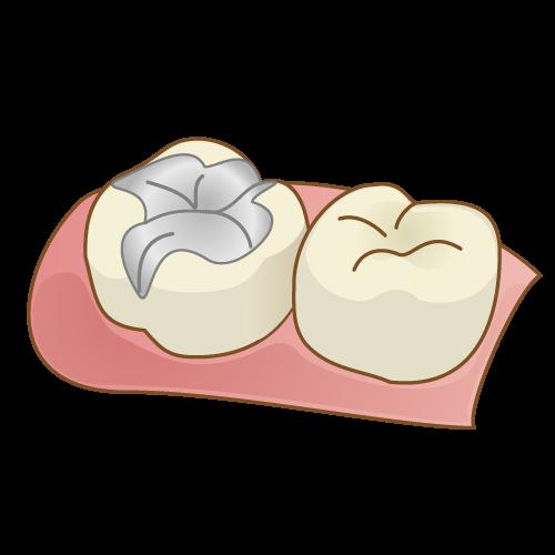 歯科治療 詰め物