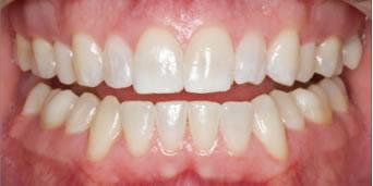 ホワイトニング 歯