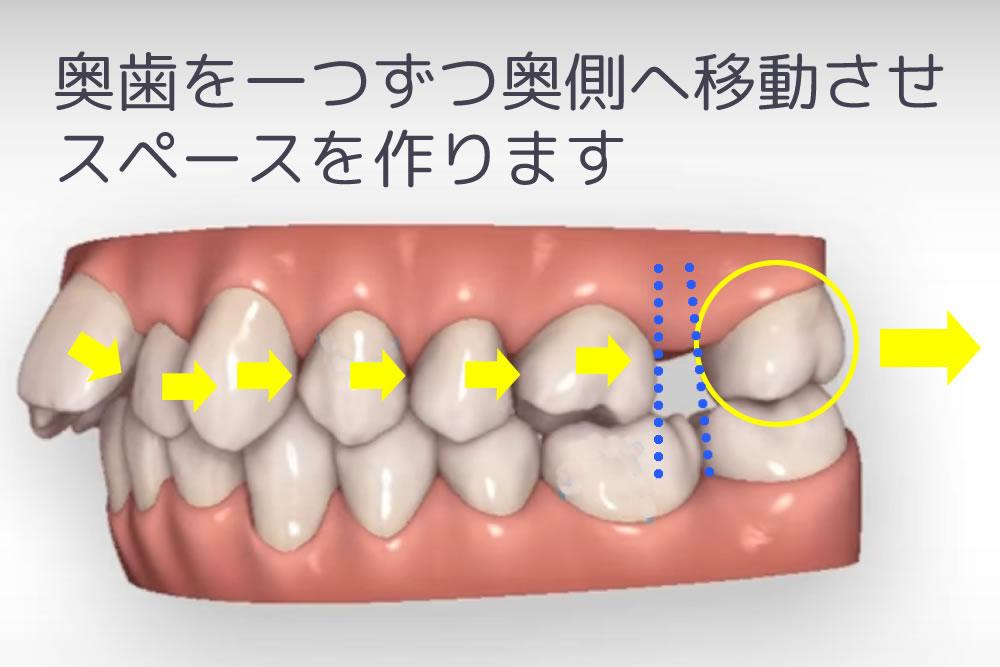 歯を遠心移動
