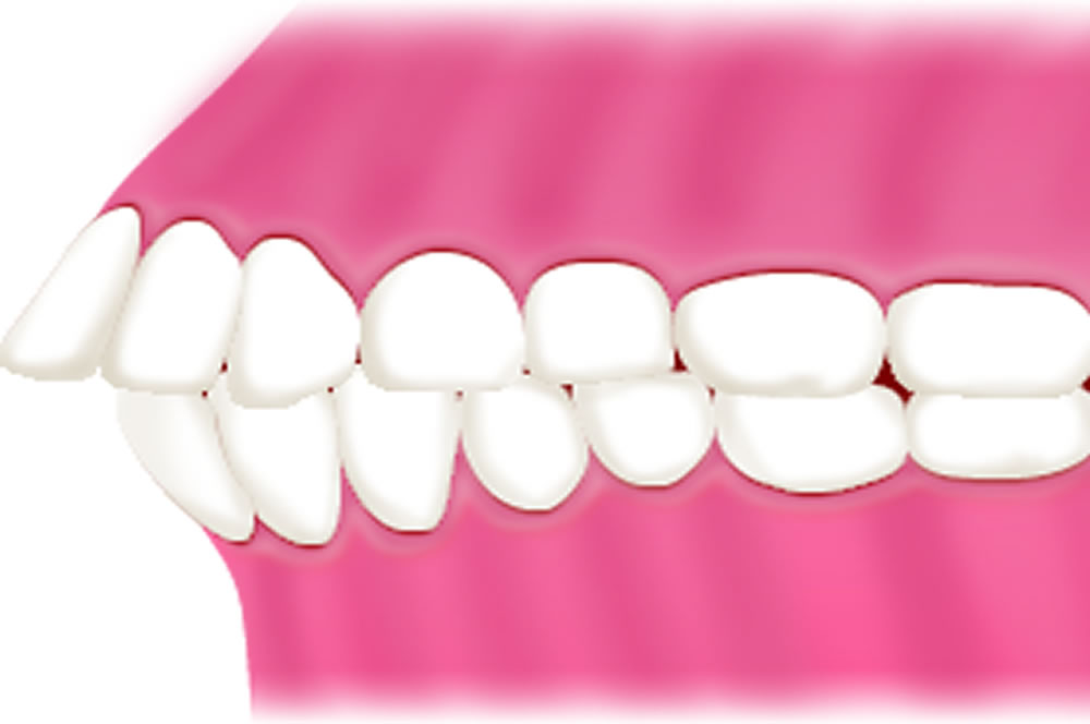 軽い出っ歯
