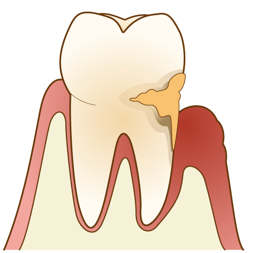 歯周病 図解