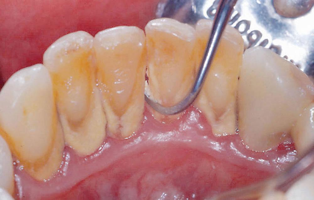 歯周病症状が軽度の場合
