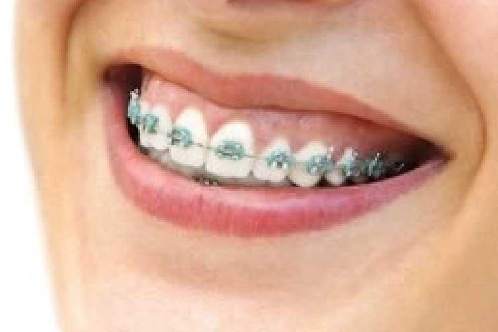 歯列矯正のブラケット装着画像